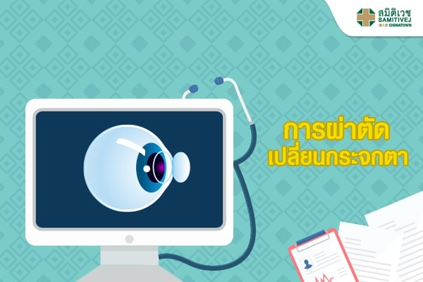 การผ่าตัดเปลี่ยนกระจกตา (Corneal Transplantation)<br /> &nbsp;
